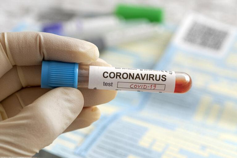 Como o coronavírus surgiu
